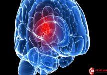 Phát hiện hóa chất mới tiêu diệt ung thư não