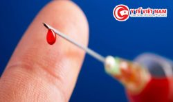 HIV – sát thủ giết người thầm lặng