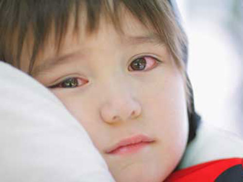 Hướng dẫn cách phòng và điều trị bệnh đau mắt đỏ