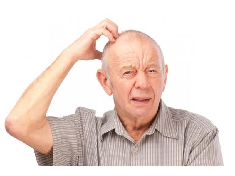 5 dấu hiệu nhận biết sớm nhất bệnh nhân mắc bệnh Alzheimer