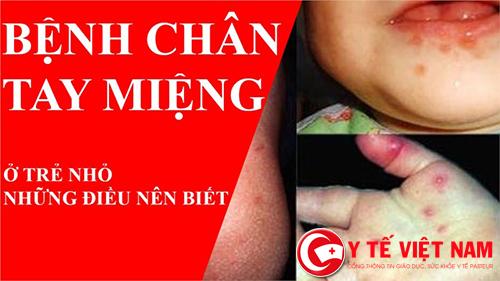 Phòng tránh bệnh tay chân miệng cho trẻ em phụ huynh cần biết