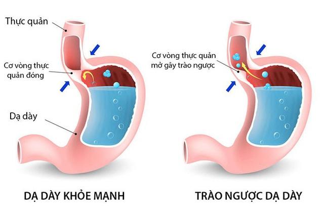 Thuốc Nam trị trào ngược dạ dày - thực quản hiệu quả