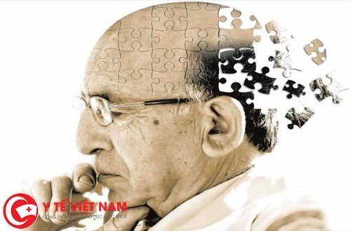 Nguyên nhân của bệnh Alzheimer còn nhiều điều chưa biết