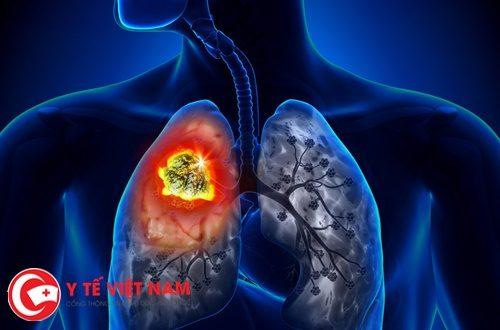 Triệu chứng và chẩn đoán bệnh ung thư phổi di căn hạch ở cổ