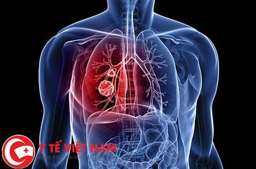 Ung thư phổi thời kì đầu thường biểu hiện với các triệu chứng như thế nào?