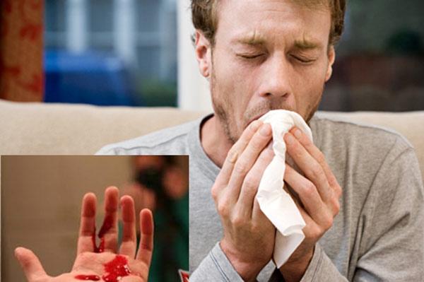 Lao là một bệnh do vi khuẩn Mycobacterium tuberculosis gây ra