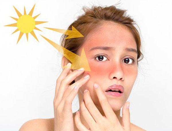 Biện pháp bảo vệ da hiệu quả trong thời tiết nắng nóng cục bộ
