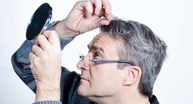 Đông Y điều trị hiệu quả chứng râu tóc bạc sớm