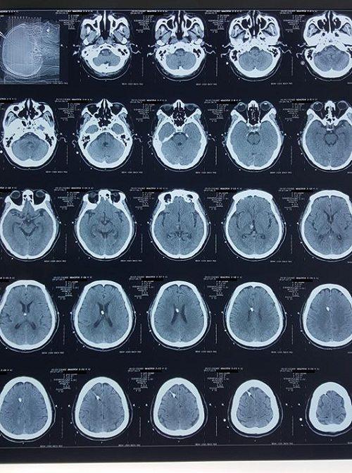 Phim chụp cắt lớp vi tính sọ não ngày thứ 6 sau nhập viện