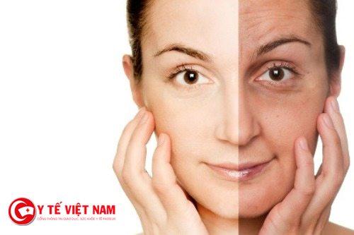 Căng da mặt bằng chỉ phương pháp làm đẹp hiệu quả
