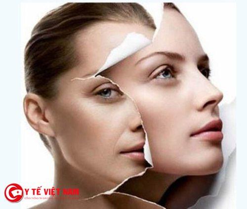 Căng da mặt bằng chỉ với quy trình khép kín