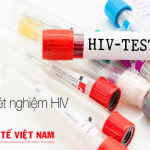 hiv-xet-nghiem
