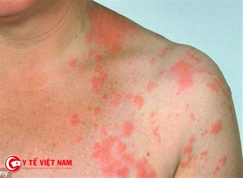 Hồng ban nút là hiện tượng xuất hiện nhiều nốt to trên cơ thể người bệnh