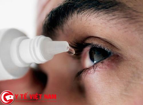 Người bệnh đau mắt đỏ cần điều trị theo chỉ dẫn của thầy thuốc