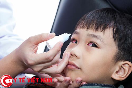 Không nên tự ý điều trị đau mắt đỏ nếu chưa có sự đồng ý của bác sĩ