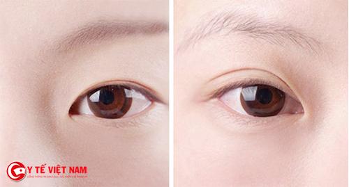 Cắt mí giúp cải thiện đôi mắt một mí