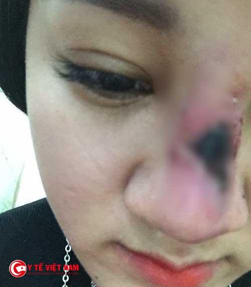 Mũi hoại tử sau khi nâng mũi do bà chủ thẩm mỹ sinh năm 2001 thực hiện