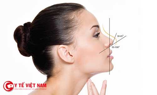 Nâng mũi Pureform cho dáng mũi cao tự nhiên