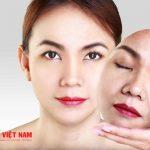 Xóa bỏ các dấu hiệu lão hóa da với căng da mặt nội soi