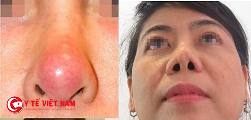 Biến chứng sau nâng mũi thường xảy ra nếu kỹ thuật kém
