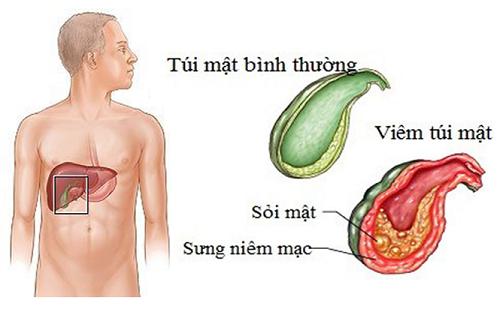 Bệnh sỏi mật cần được phát hiện sớm để điều trị kịp thời