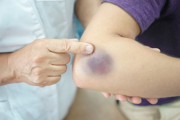 Bác sĩ cảnh báo những dấu hiệu chảy máu bên trong cần chú ý
