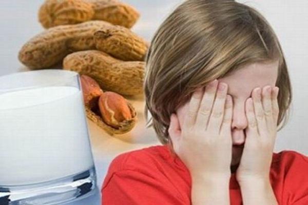 Các biểu hiện của dị ứng thức ăn ở trẻ và cách phòng tránh