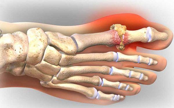 Bài thuốc Đông Y điều trị bệnh Gout cực hiệu quả