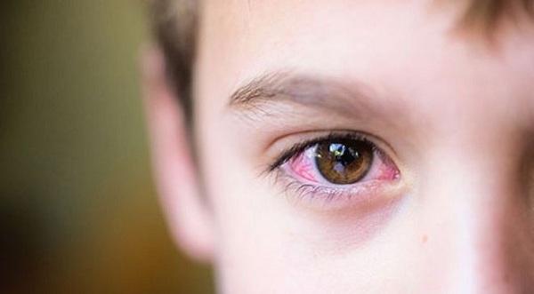 Thiếu vitamin A gây khô mắt