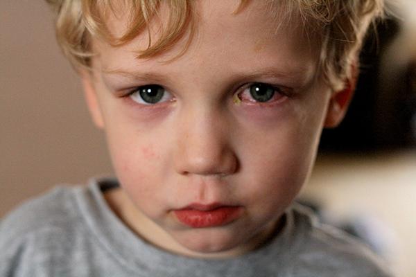 Chăm sóc trẻ bị đau mắt đỏ như thế nào để trẻ nhanh chóng khỏi bệnh
