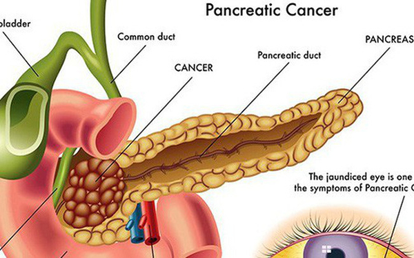 Nguyên nhân, dấu hiệu và chẩn đoán điều trị viêm tụy cấp