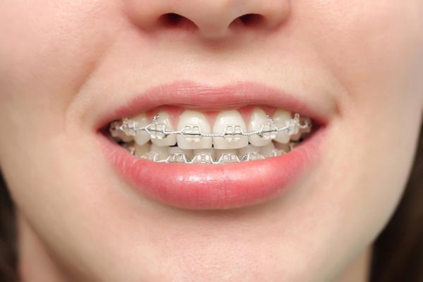 Giải đáp 9 thắc mắc hay gặp nhất trước khi niềng răng