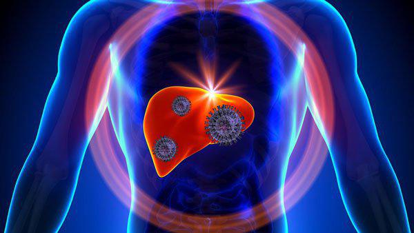 Tìm hiểu tổng quan về bệnh viêm gan A