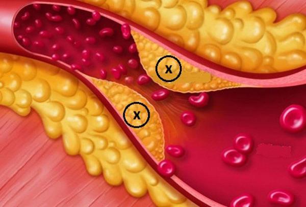 Nguyên nhân và yếu tố nguy cơ gây rối loạn lipid máu