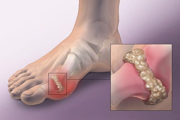 Những cơn đau khớp ở bệnh nhân Gout thường là những cơn đau cấp