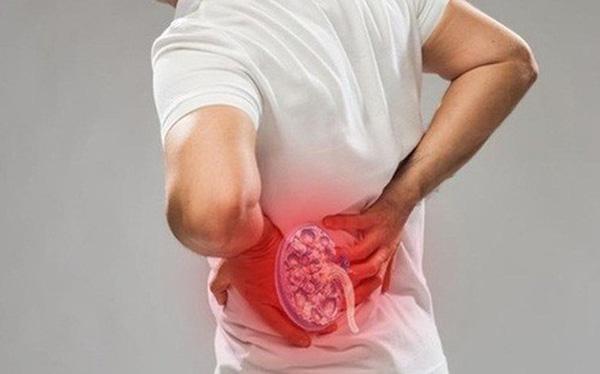 Bệnh nhân thường xuất hiện những cơn đau quặn thận