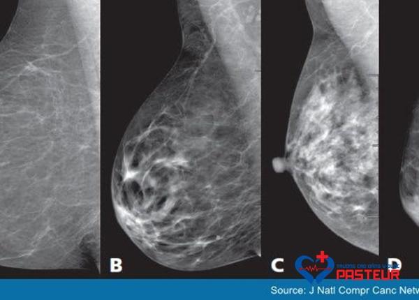 Cách phòng tránh bệnh ung thư vú hiệu quả