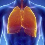 Tìm hiểu nguyên nhân và biểu hiện của tràn khí màng phổi