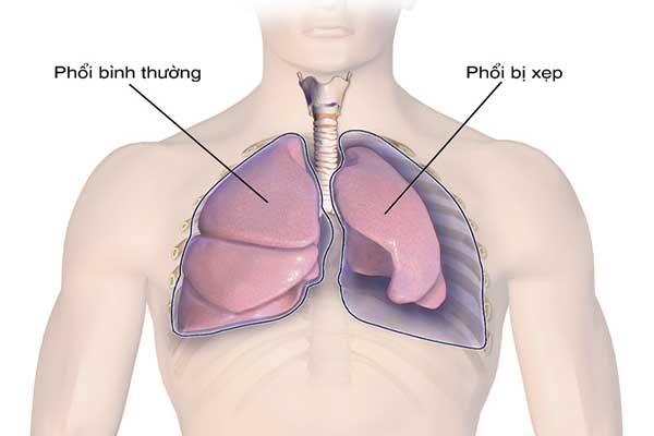 Tràn khí màng phổi có thể gây biến chứng nguy hiểm