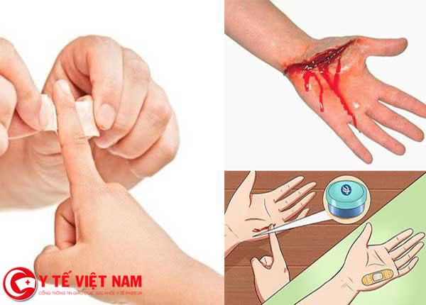 Hướng dẫn sơ cứu vết cắt sâu và vết cào xước, phòng tránh nhiễm trùng