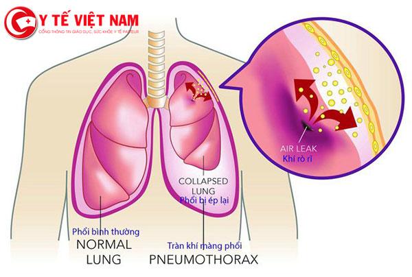 Đặc điểm của tràn dịch màng phổi