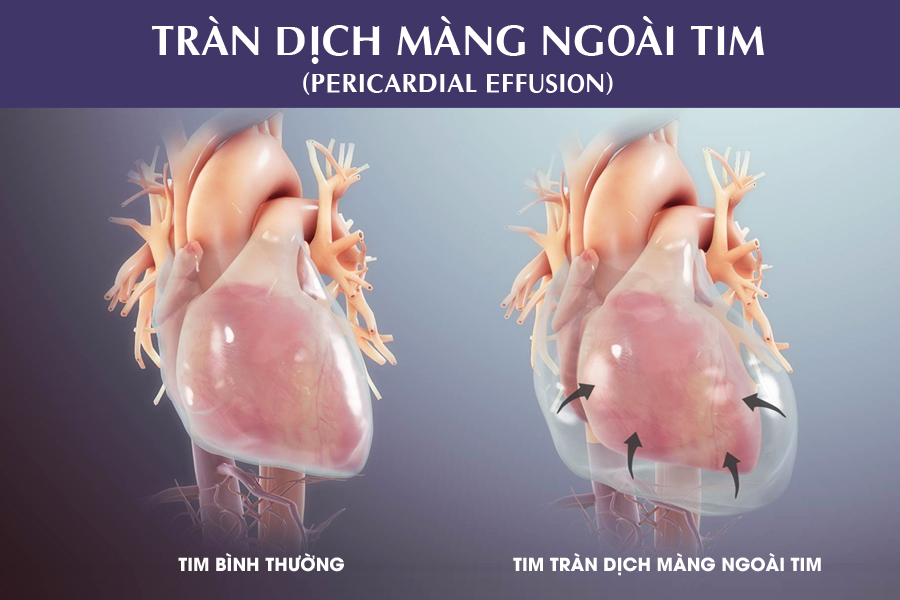 Tràn dịch màng tim: Nguyên nhân và phương pháp điều trị