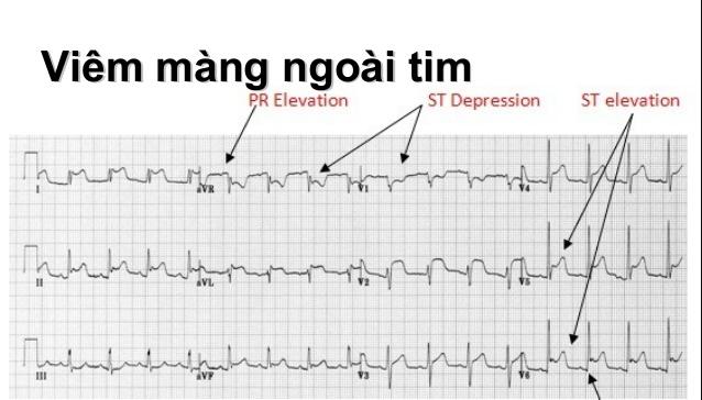 Biểu đồ viêm màng ngoài tim