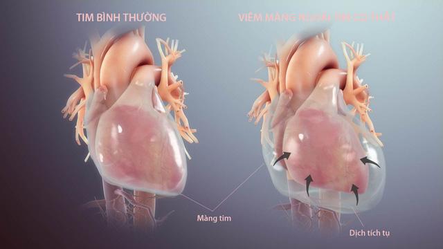 Nhận biết viêm màng ngoài tim